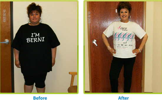 """Before and after weight loss surgery"", jackiebese (CC BY-SA)"